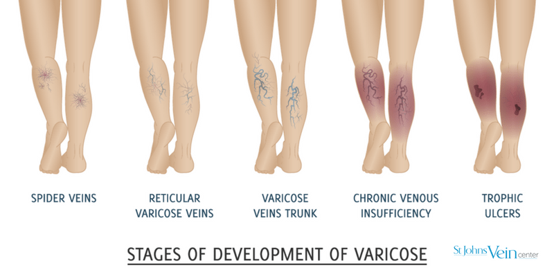 veins conditions