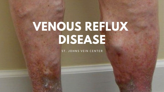 Venous Reflux disease