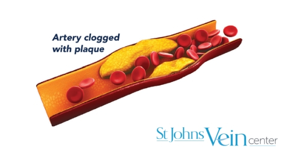 How cholesterol affects your vascular health