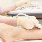 WHAT TO EXPECT FROM A VEIN SCREENING