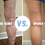 VARICOSE AND SPIDER VEINS: ARE THEY THE SAME?